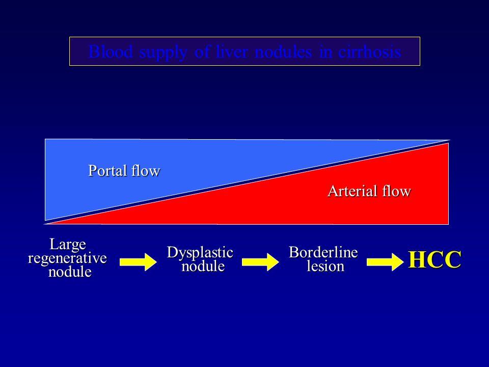 Largeregenerativenodule DysplasticnoduleBorderlinelesion HCC Portal flow Arterial flow Blood supply of liver nodules in cirrhosis