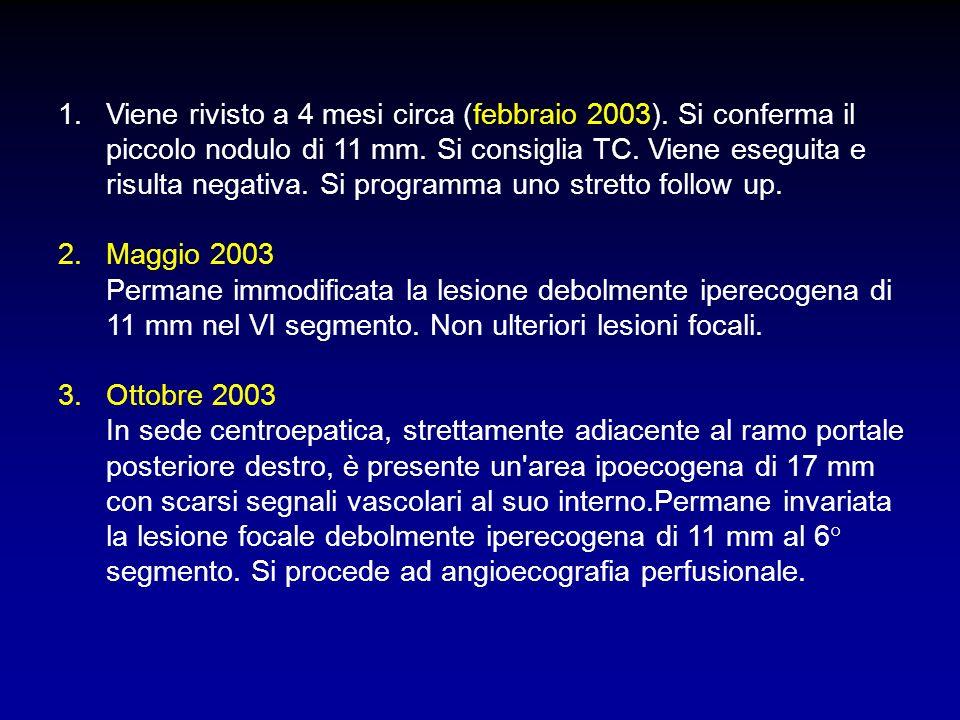1. 1.Viene rivisto a 4 mesi circa (febbraio 2003). Si conferma il piccolo nodulo di 11 mm. Si consiglia TC. Viene eseguita e risulta negativa. Si prog