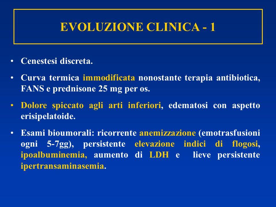EVOLUZIONE CLINICA - 1 Cenestesi discreta. Curva termica immodificata nonostante terapia antibiotica, FANS e prednisone 25 mg per os. Dolore spiccato
