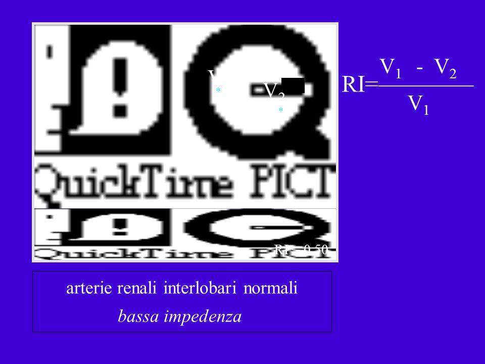 V1V1 V2V2 * * RI= V 1 - V 2 V1V1 arterie renali interlobari normali bassa impedenza RI = 0.50