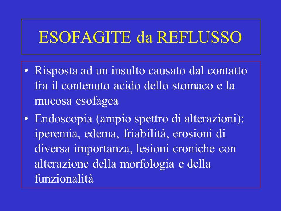ESOFAGITE da REFLUSSO Risposta ad un insulto causato dal contatto fra il contenuto acido dello stomaco e la mucosa esofagea Endoscopia (ampio spettro