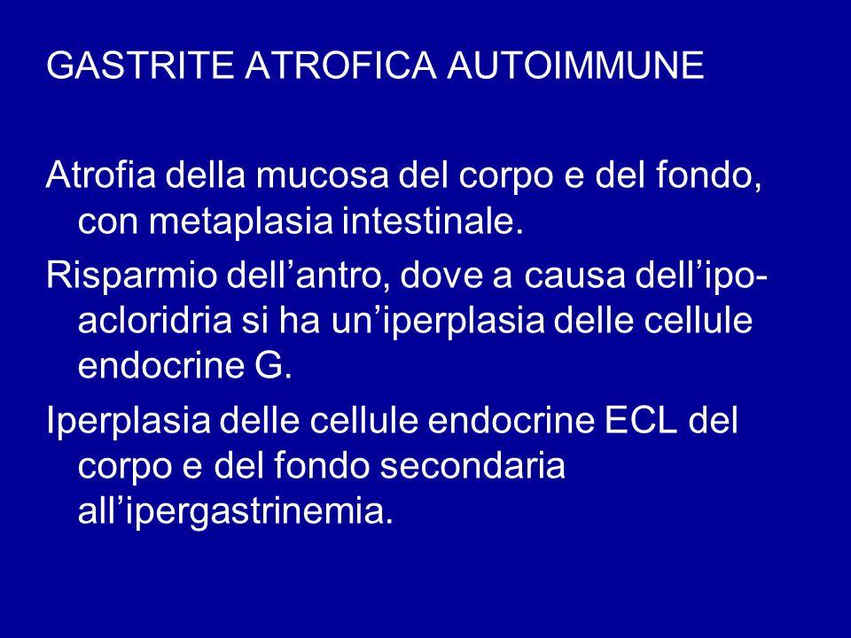 GASTRITE ATROFICA AUTOIMMUNE Atrofia della mucosa del corpo e del fondo, con metaplasia intestinale. Risparmio dellantro, dove a causa dellipo- aclori