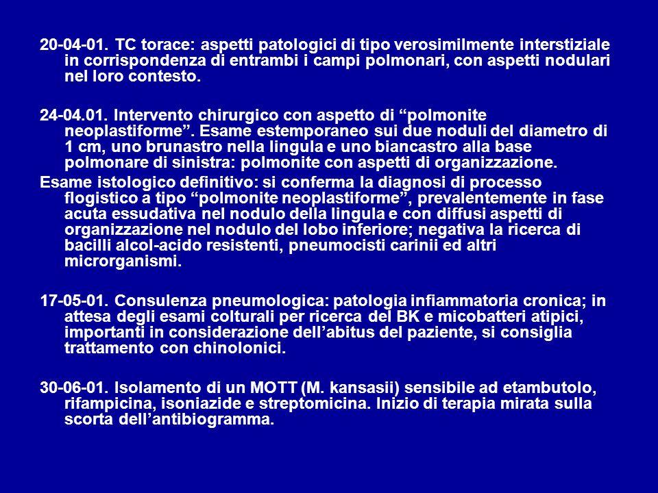 20-04-01. TC torace: aspetti patologici di tipo verosimilmente interstiziale in corrispondenza di entrambi i campi polmonari, con aspetti nodulari nel