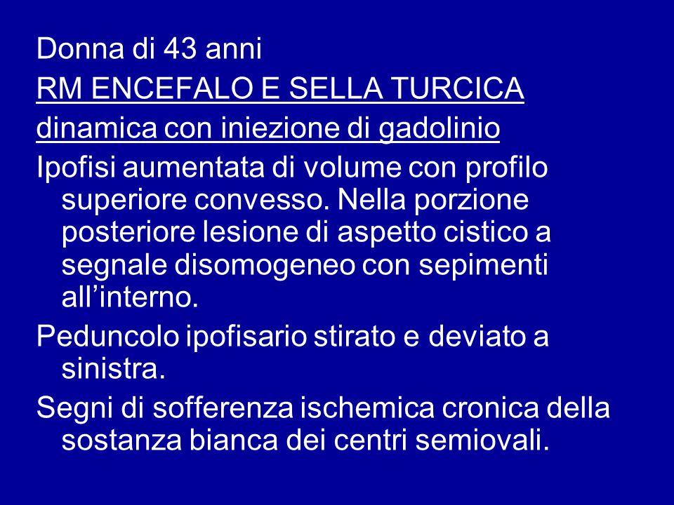 Donna di 43 anni RM ENCEFALO E SELLA TURCICA dinamica con iniezione di gadolinio Ipofisi aumentata di volume con profilo superiore convesso. Nella por