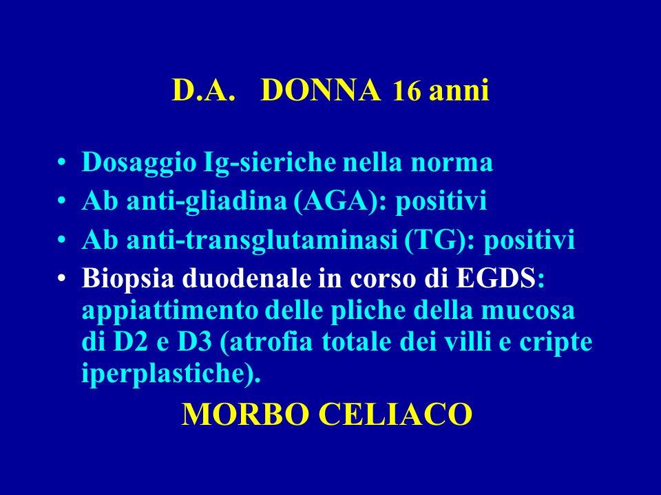 D.A. DONNA 16 anni Dosaggio Ig-sieriche nella norma Ab anti-gliadina (AGA): positivi Ab anti-transglutaminasi (TG): positivi Biopsia duodenale in cors