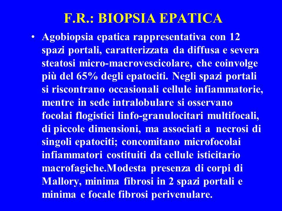 F.R.: BIOPSIA EPATICA Agobiopsia epatica rappresentativa con 12 spazi portali, caratterizzata da diffusa e severa steatosi micro-macrovescicolare, che