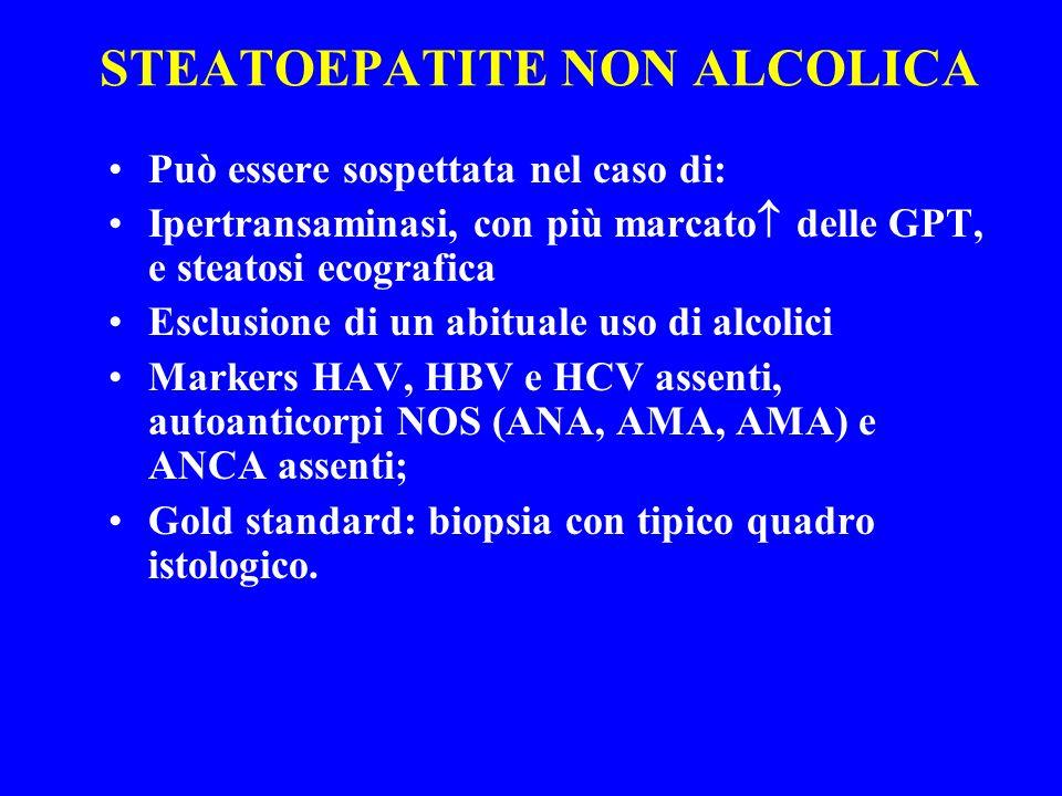 STEATOEPATITE NON ALCOLICA Può essere sospettata nel caso di: Ipertransaminasi, con più marcato delle GPT, e steatosi ecografica Esclusione di un abit