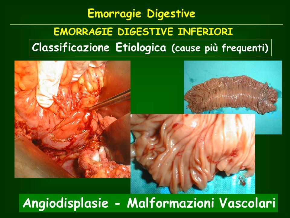 EMORRAGIE DIGESTIVE INFERIORI Classificazione Etiologica (cause più frequenti) Angiodisplasie - Malformazioni Vascolari Emorragie Digestive