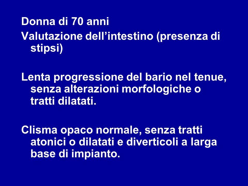 Donna di 70 anni Valutazione dellintestino (presenza di stipsi) Lenta progressione del bario nel tenue, senza alterazioni morfologiche o tratti dilata
