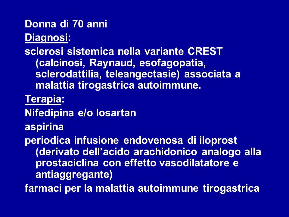 Donna di 70 anni Diagnosi: sclerosi sistemica nella variante CREST (calcinosi, Raynaud, esofagopatia, sclerodattilia, teleangectasie) associata a mala