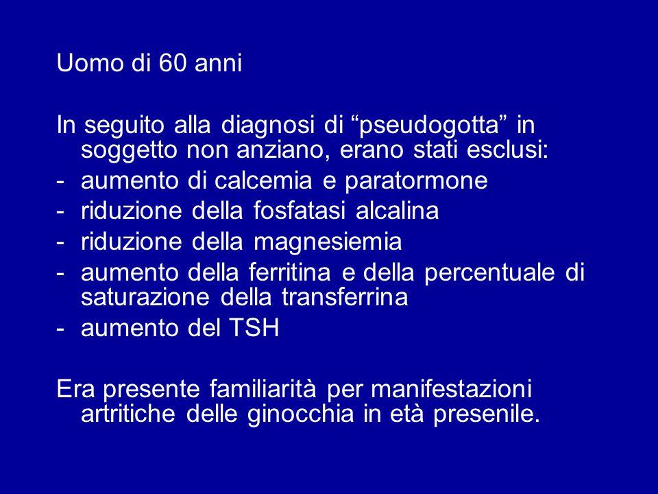 Uomo di 60 anni In seguito alla diagnosi di pseudogotta in soggetto non anziano, erano stati esclusi: -aumento di calcemia e paratormone -riduzione de