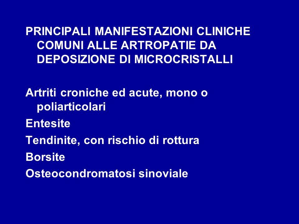 PRINCIPALI MANIFESTAZIONI CLINICHE COMUNI ALLE ARTROPATIE DA DEPOSIZIONE DI MICROCRISTALLI Artriti croniche ed acute, mono o poliarticolari Entesite T