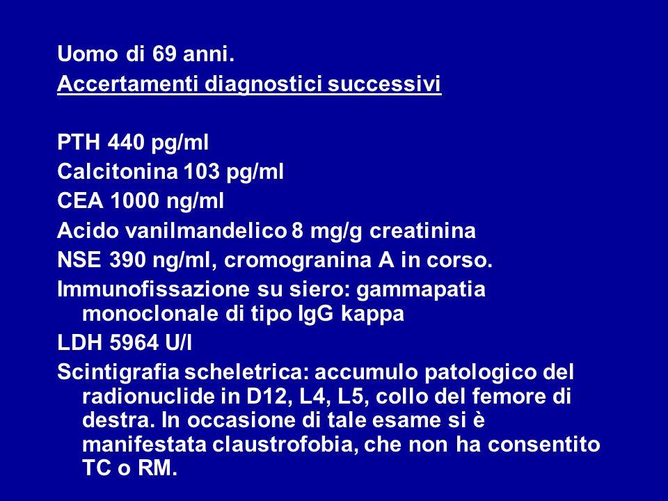 Uomo di 69 anni. Accertamenti diagnostici successivi PTH 440 pg/ml Calcitonina 103 pg/ml CEA 1000 ng/ml Acido vanilmandelico 8 mg/g creatinina NSE 390