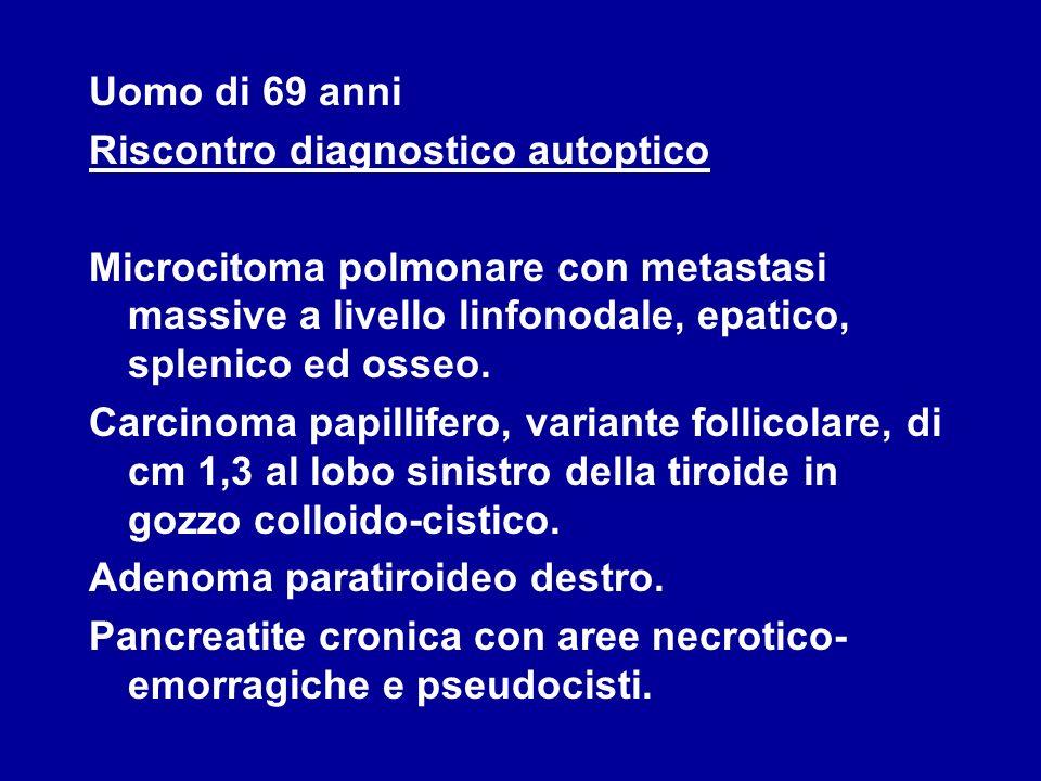 Uomo di 69 anni Riscontro diagnostico autoptico Microcitoma polmonare con metastasi massive a livello linfonodale, epatico, splenico ed osseo. Carcino