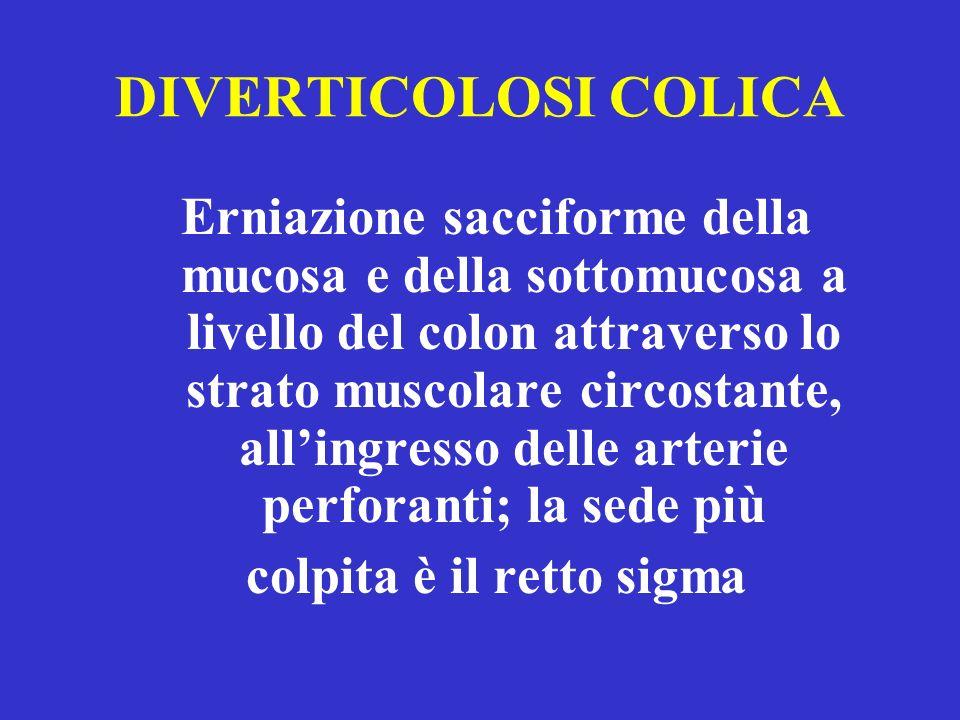 DIVERTICOLOSI COLICA Erniazione sacciforme della mucosa e della sottomucosa a livello del colon attraverso lo strato muscolare circostante, allingresso delle arterie perforanti; la sede più colpita è il retto sigma