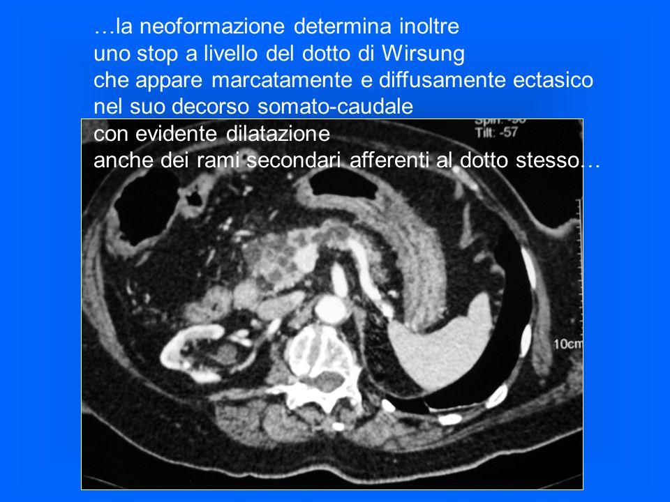 ..non segni infiltrativi della C duodenale, ma evidente compressione…