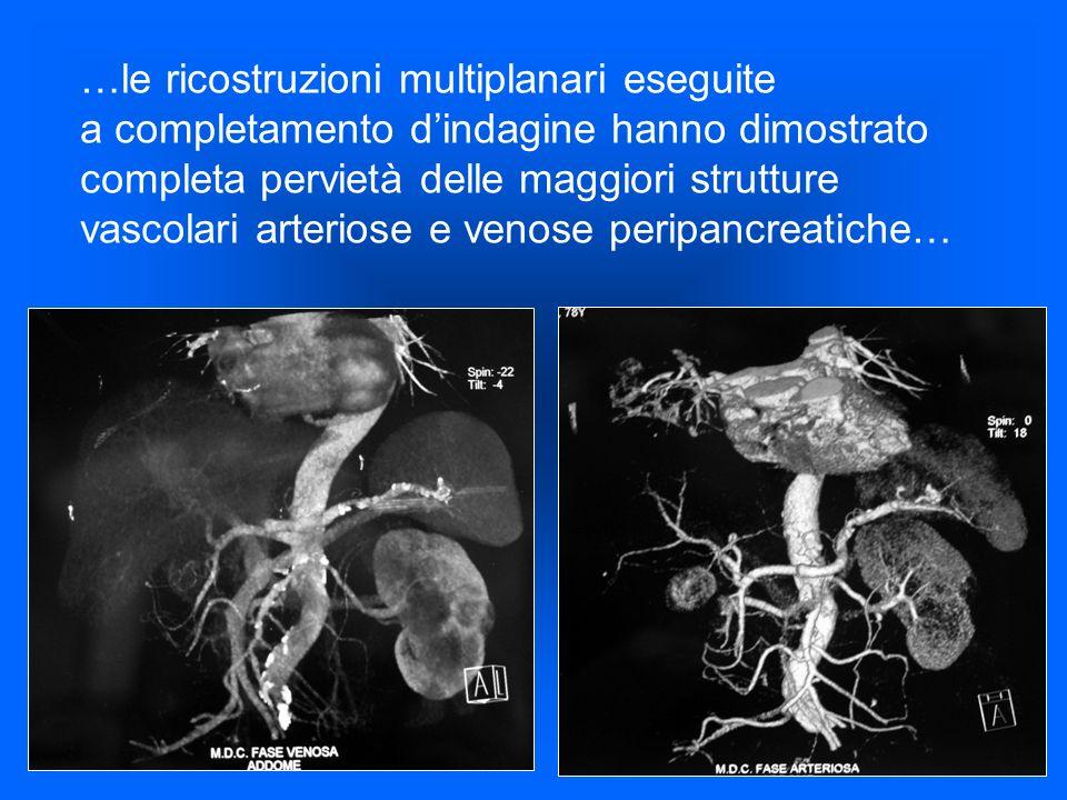 …le ricostruzioni multiplanari eseguite a completamento dindagine hanno dimostrato completa pervietà delle maggiori strutture vascolari arteriose e ve