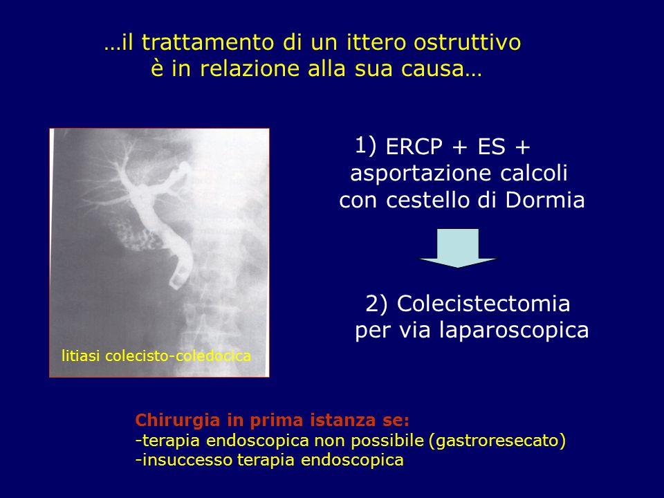 …il trattamento di un ittero ostruttivo è in relazione alla sua causa… litiasi colecisto-coledocica ERCP + ES + asportazione calcoli con cestello di D