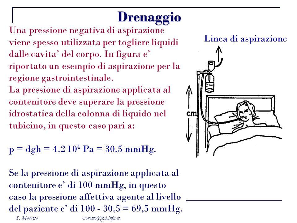 S. Moretto moretto@pd.infn.it Una pressione negativa di aspirazione viene spesso utilizzata per togliere liquidi dalle cavita del corpo. In figura e r