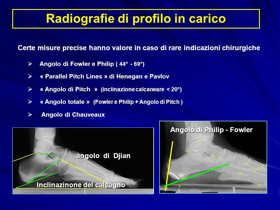 Radiografie di profilo in carico Angolo di Fowler e Philip ( 44° - 69°) « Parallel Pitch Lines » di Henegan e Pavlov « Angolo di Pitch » (inclinazione