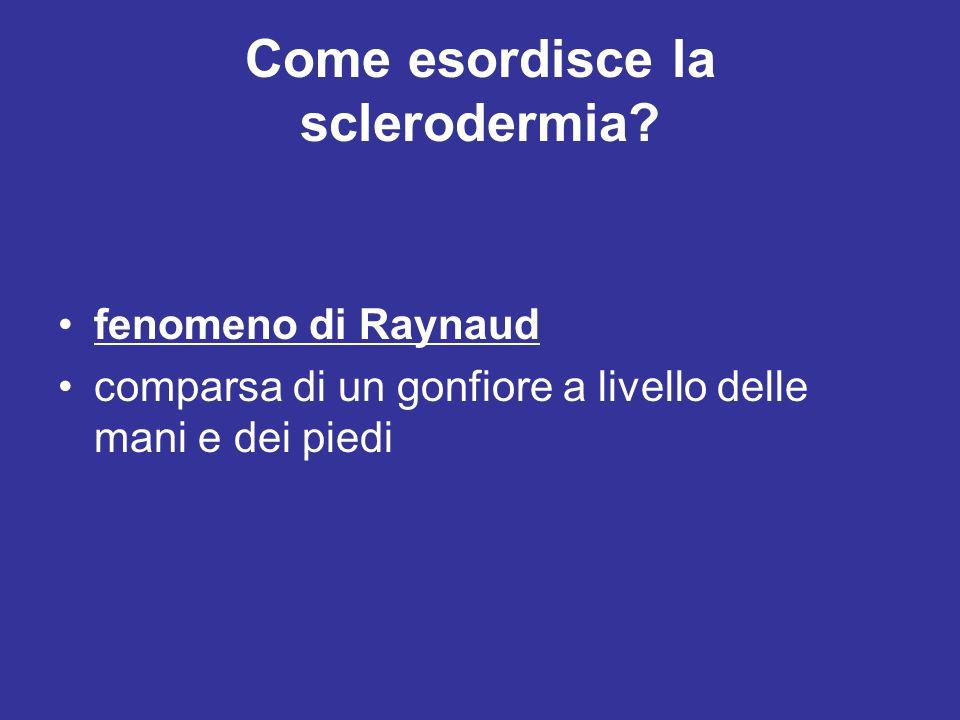 Come esordisce la sclerodermia? fenomeno di Raynaud comparsa di un gonfiore a livello delle mani e dei piedi