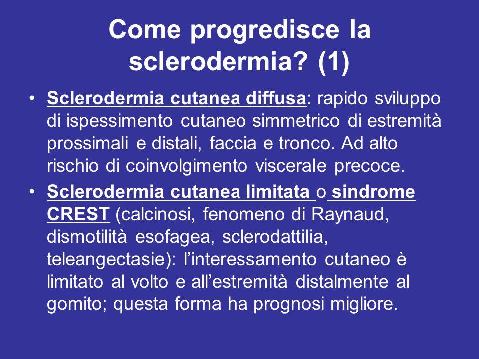 Come progredisce la sclerodermia? (1) Sclerodermia cutanea diffusa: rapido sviluppo di ispessimento cutaneo simmetrico di estremità prossimali e dista