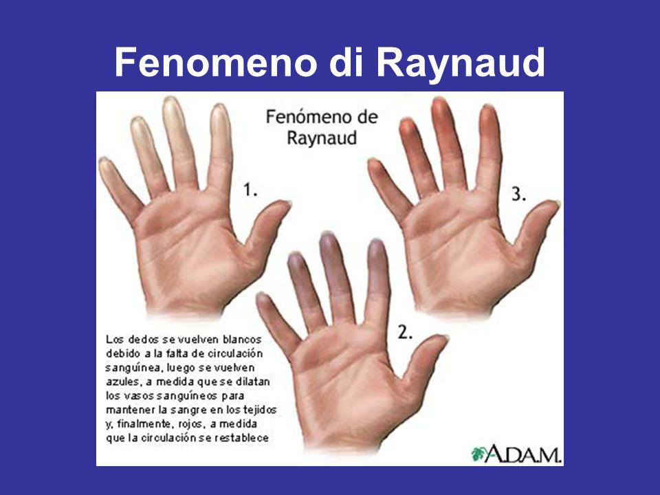 Fenomeno di Raynaud