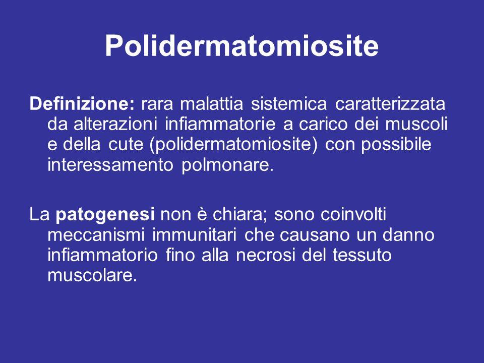 Polidermatomiosite Definizione: rara malattia sistemica caratterizzata da alterazioni infiammatorie a carico dei muscoli e della cute (polidermatomios