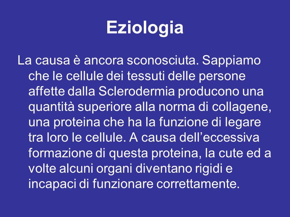 Eziologia La causa è ancora sconosciuta. Sappiamo che le cellule dei tessuti delle persone affette dalla Sclerodermia producono una quantità superiore