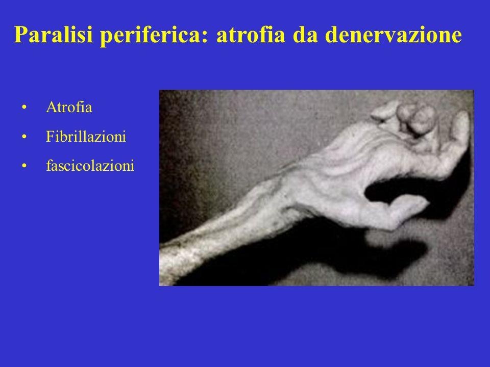 Paralisi periferica: atrofia da denervazione Atrofia Fibrillazioni fascicolazioni