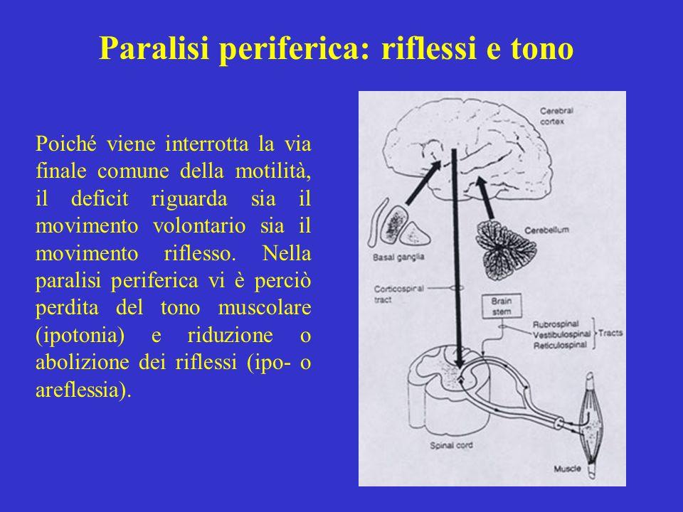 Paralisi periferica: riflessi e tono Poiché viene interrotta la via finale comune della motilità, il deficit riguarda sia il movimento volontario sia