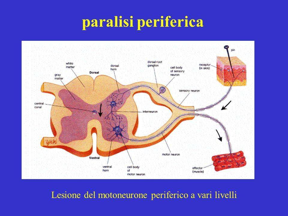 paralisi periferica Lesione del motoneurone periferico a vari livelli