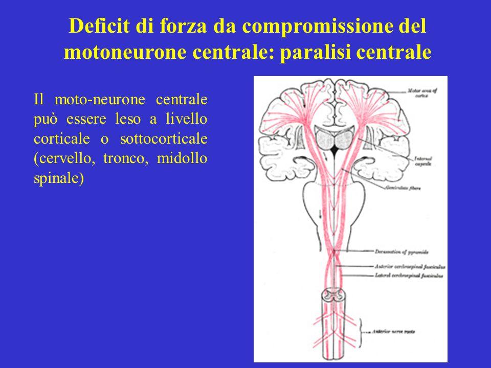 Deficit di forza da compromissione del motoneurone centrale: paralisi centrale Il moto-neurone centrale può essere leso a livello corticale o sottocor