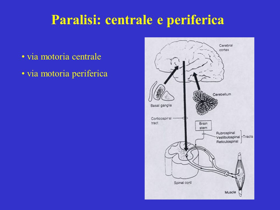 Paralisi: centrale e periferica via motoria centrale via motoria periferica