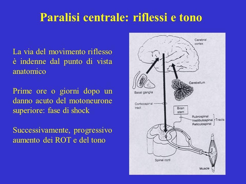 Paralisi centrale: riflessi e tono La via del movimento riflesso è indenne dal punto di vista anatomico Prime ore o giorni dopo un danno acuto del mot