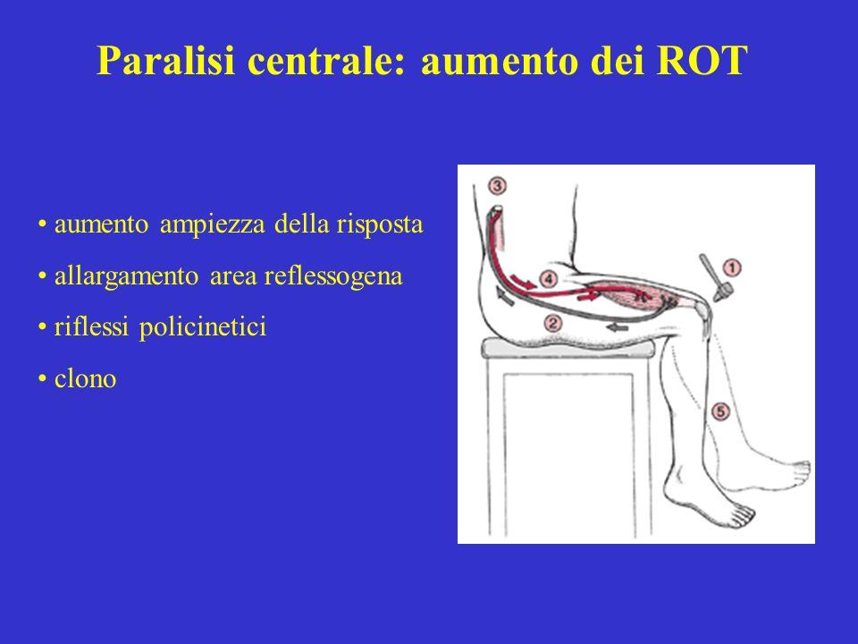 Paralisi centrale: aumento dei ROT aumento ampiezza della risposta allargamento area reflessogena riflessi policinetici clono