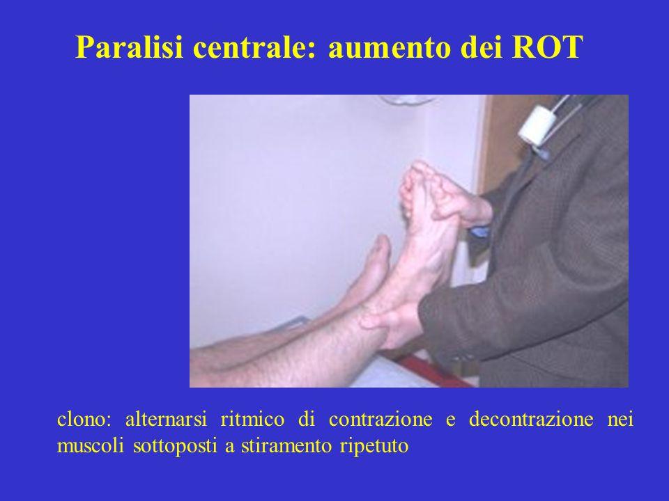 Paralisi centrale: aumento dei ROT clono: alternarsi ritmico di contrazione e decontrazione nei muscoli sottoposti a stiramento ripetuto