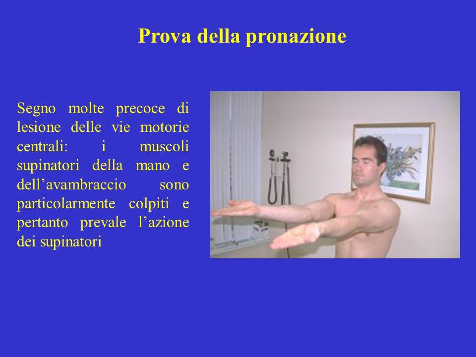 Prova della pronazione Segno molte precoce di lesione delle vie motorie centrali: i muscoli supinatori della mano e dellavambraccio sono particolarmen