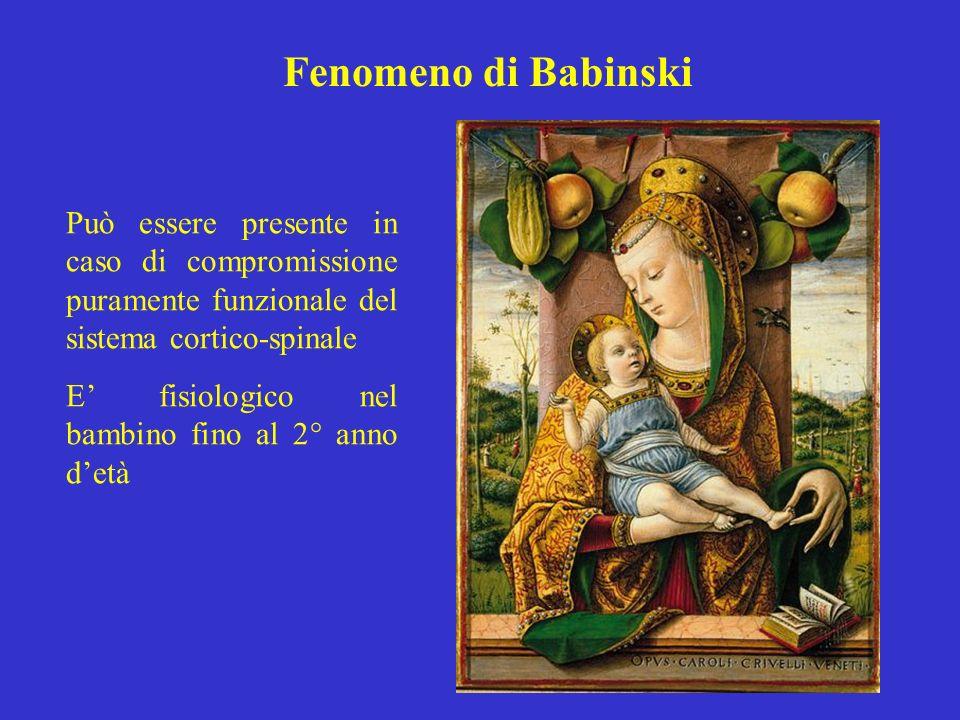Fenomeno di Babinski Può essere presente in caso di compromissione puramente funzionale del sistema cortico-spinale E fisiologico nel bambino fino al