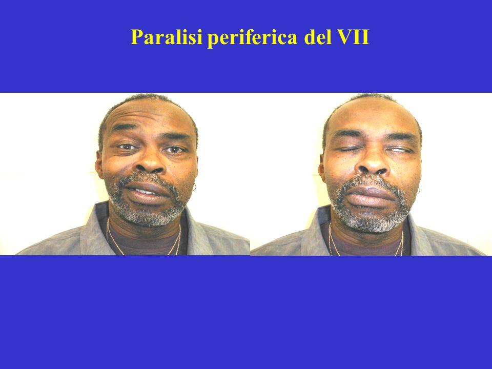 Paralisi periferica del VII