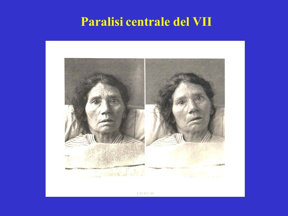 Paralisi centrale del VII