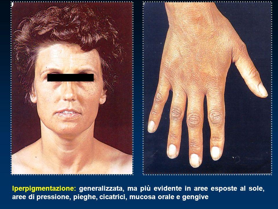 Iperpigmentazione: generalizzata, ma più evidente in aree esposte al sole, aree di pressione, pieghe, cicatrici, mucosa orale e gengive