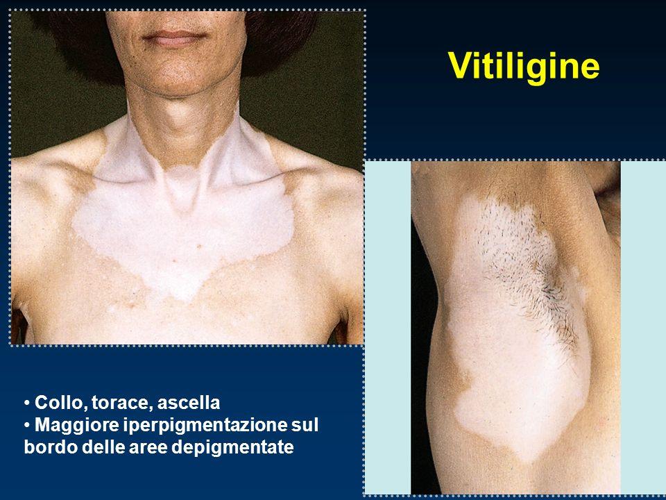 Vitiligine Collo, torace, ascella Maggiore iperpigmentazione sul bordo delle aree depigmentate
