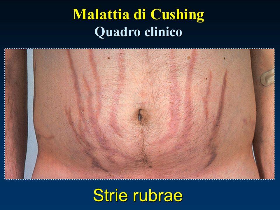 Malattia di Cushing Quadro clinico Strie rubrae