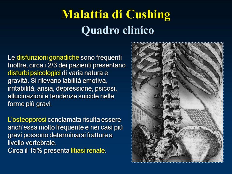 Malattia di Cushing Quadro clinico Le disfunzioni gonadiche sono frequenti Inoltre, circa i 2/3 dei pazienti presentano disturbi psicologici di varia