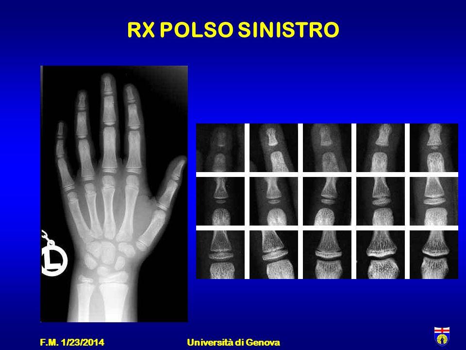 F.M. 1/23/2014Università di Genova RX POLSO SINISTRO