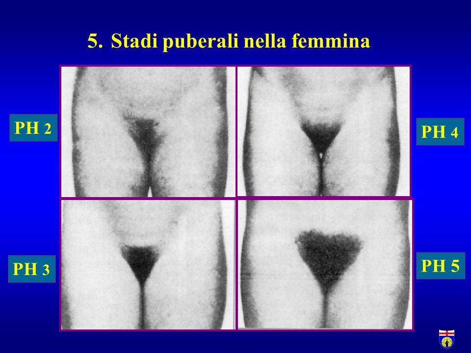 PH 2 PH 3 PH 4 PH 5 5.Stadi puberali nella femmina