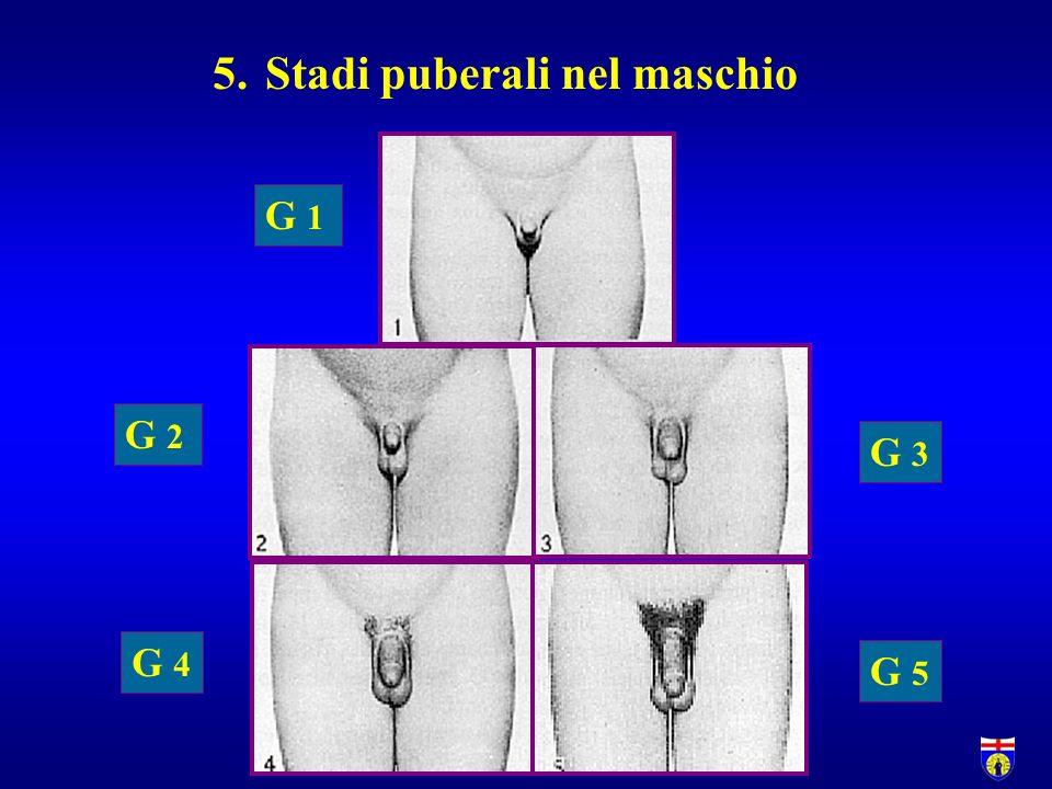 5.Stadi puberali nel maschio G 1 G 2 G 4 G 3 G 5