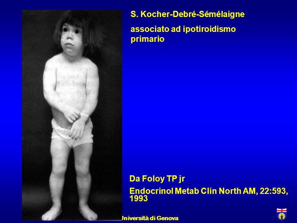 F.M. 1/23/2014Università di Genova S. Kocher-Debré-Sémélaigne associato ad ipotiroidismo primario Da Foloy TP jr Endocrinol Metab Clin North AM, 22:59