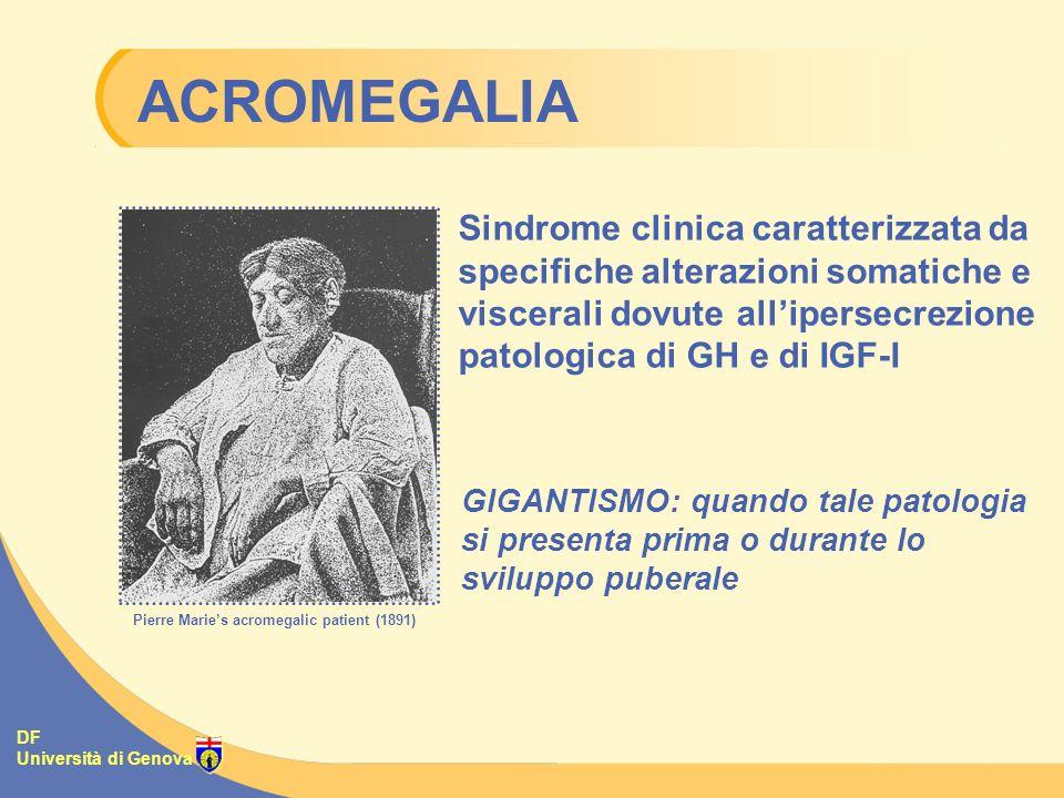 DF Università di Genova Sindrome clinica caratterizzata da specifiche alterazioni somatiche e viscerali dovute allipersecrezione patologica di GH e di